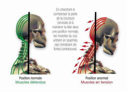 Douleurs cervicales